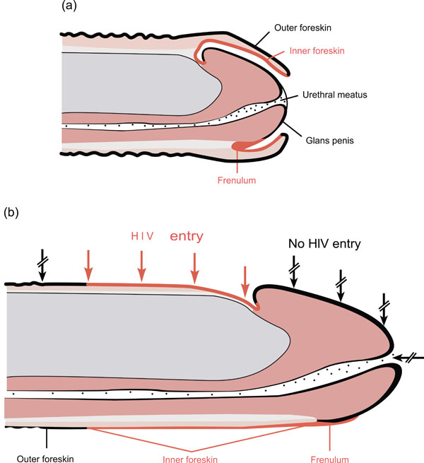 hiv transmission without penetration