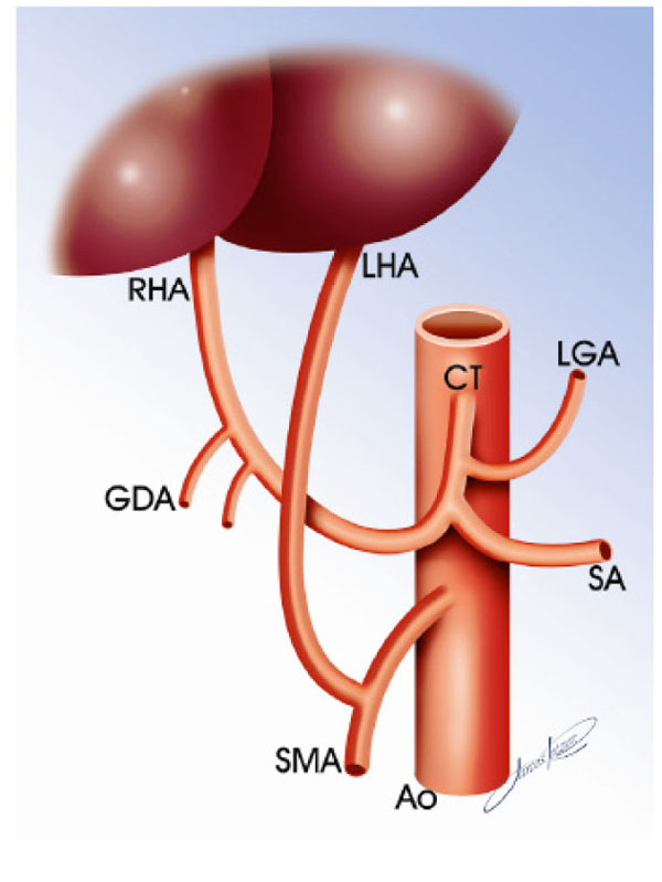 Left Hepatic Artery Arising From The Superior Mesenteric Artery A