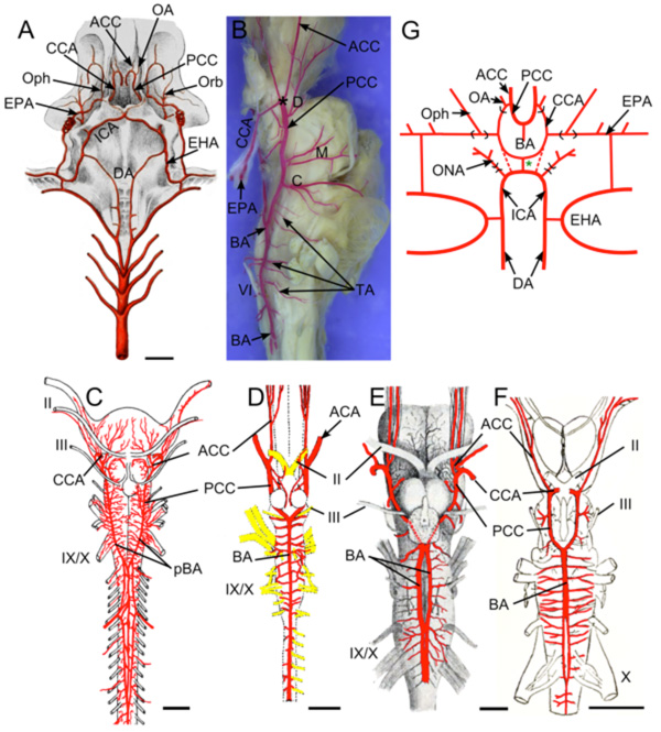 Comparative Anatomy Of The Carotid Basilar Arterial Trunk And