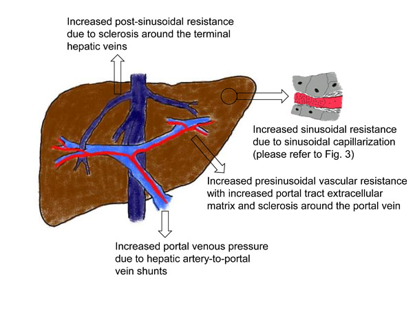 Should Low Central Venous Pressure Be Maintained during Liver ...