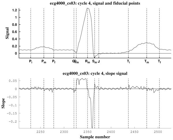 Electrocardiogram Fiducial Points Detection and Estimation