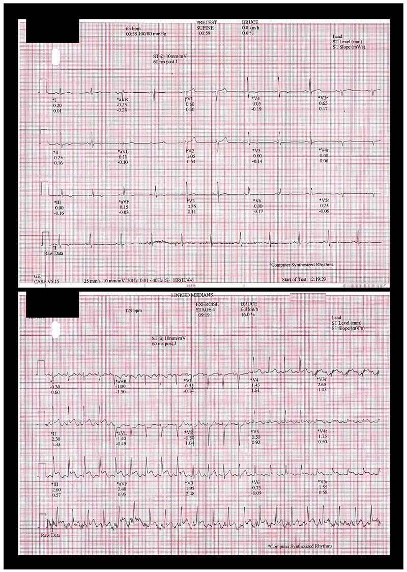The Open Cardiovascular Medicine Journal
