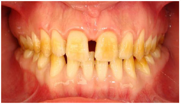 an interdisciplinary approach for hypoplastic amelogenesis imperfecta a case report