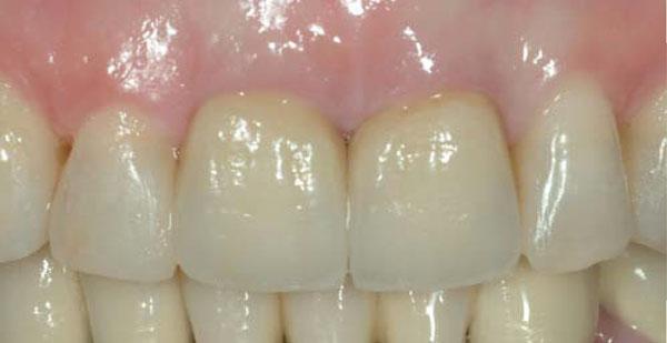 Denti bianchissimi yahoo dating