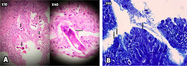 Strongyloides Infection in a Man with Abdominal Pain and a History