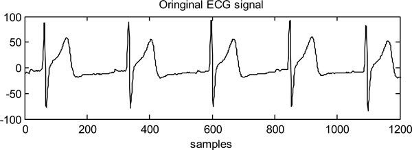 Dynamic Modelling of Heart Rate Response Under Different Exercise