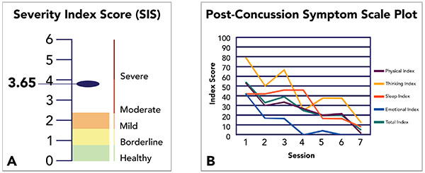 Developing the Standard of Care for Post-Concussion