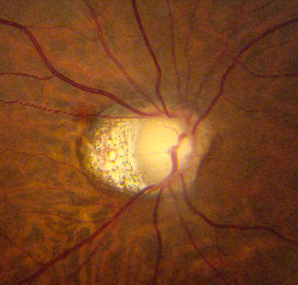 Optic Nerve Cupping: Evaluating Optic Nerve Damage: Pearls And Pitfalls