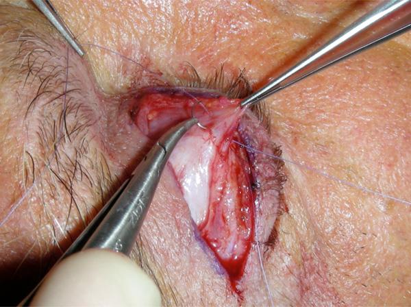 Transcutaneous Blepharoptosis Surgery Advancement Of