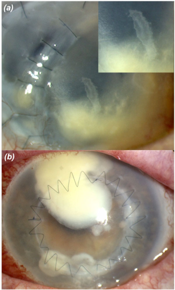 description of microbial keratitis