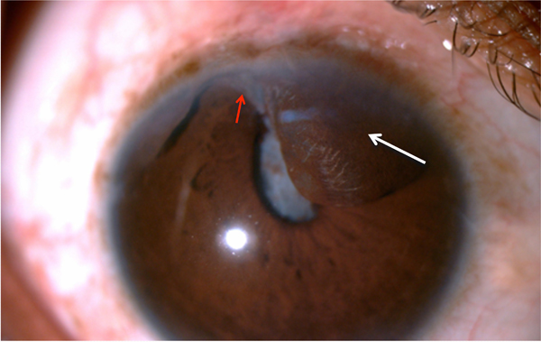 Surgical Management Of Post Traumatic Iris Cyst Fulltext