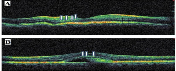 The Causes Of Hyperreflective Dots In Optical Coherence Tomography