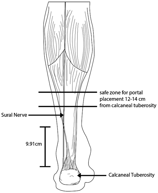 Cadaveric Anatomical Study of Sural Nerve: Where is The Safe Area ...