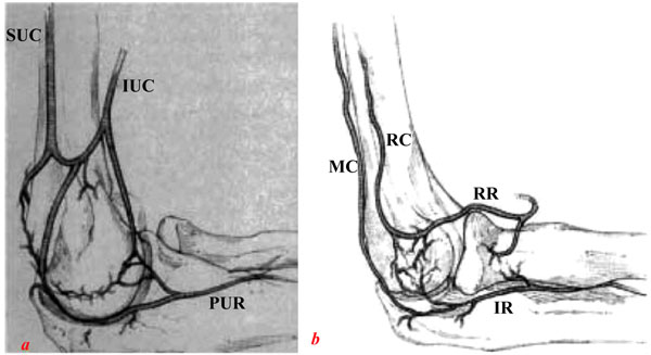 Challenges and Solutions in Management of Distal Humerus Fractures ...