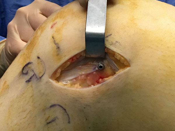 A New Reconstructive Technique of the Anterolateral Ligament