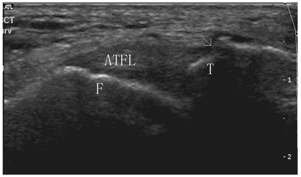 An Ultrasound Classification of Anterior Talofibular Ligament (ATFL ...