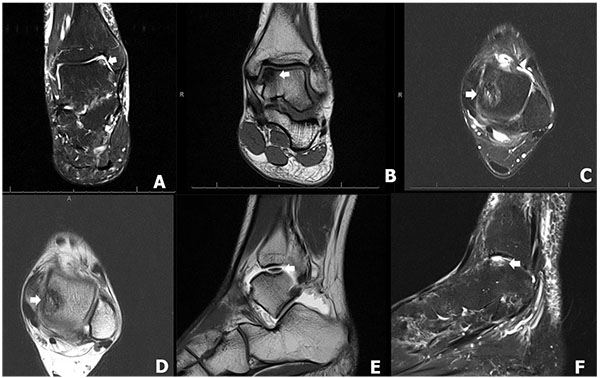 Management of Osteochondral Lesions of the Talar Dome ~ Fulltext