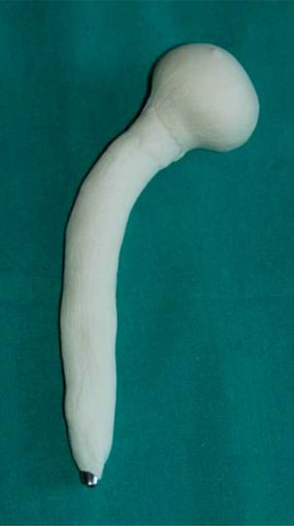 Revision In Cemented And Cementless Infected Hip Arthroplasty Fulltext