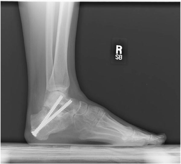 Staged Subtalar Fusion For Severe Calcaneus Fractures With