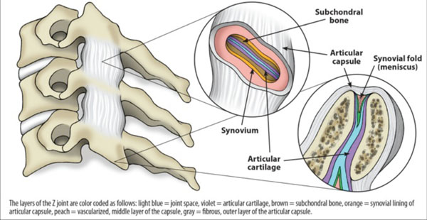 Chronic Neck Pain: Making the Connection Between Capsular Ligament ...