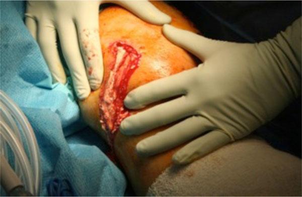Gout Symptoms Diagnosis Treatment  Health