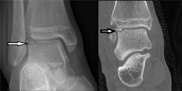 Acute Osteochondral Fractures in the Lower Extremities