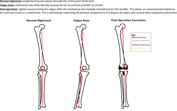 arthroplasty in the valgus knee  comparison and discussion