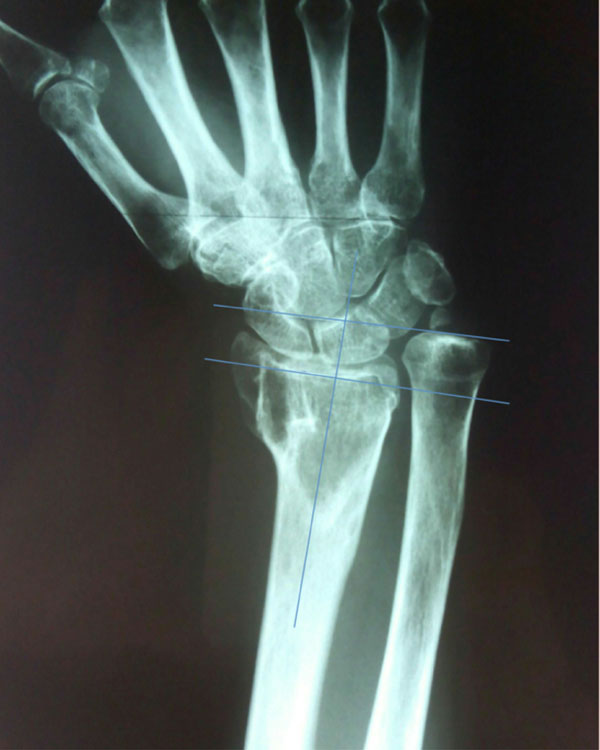 Ulnar Shortening Osteotomy After Distal Radius Fracture Malunion ...