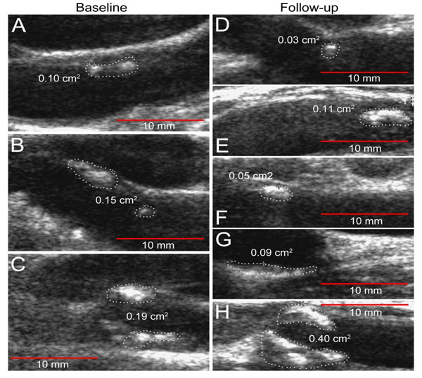 Carotid Artery Atherosclerosis In Patients With Active Rheumatoid Arthritis Predictors Of Plaque Occurrence And Progression Over 24 Weeks